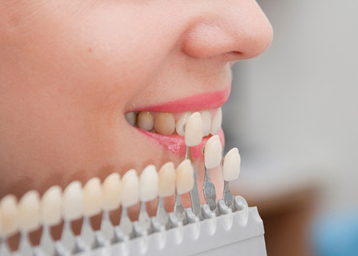 protezirovanie_zubov-358-256